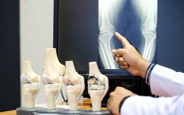 Saiba quando você deve consultar um ortopedista