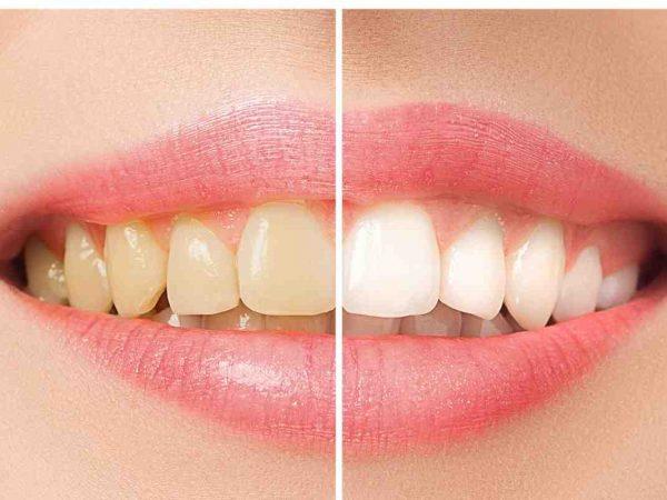 Alternativas de clareamento dental em 2021